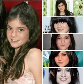 Chirurgie esthétique ou pas pour Kylie Jenner ? 2