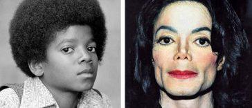 Sans chirurgie esthétique, le visage de Michael Jackson aurait ressemblé à cela